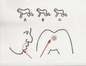 Человеческая многоножка схема операции